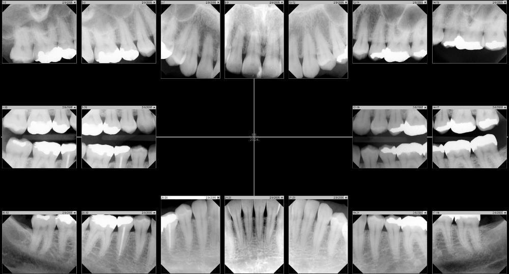 Modern Dental Technology | Tampa FL Dentist | Dr Mancuso