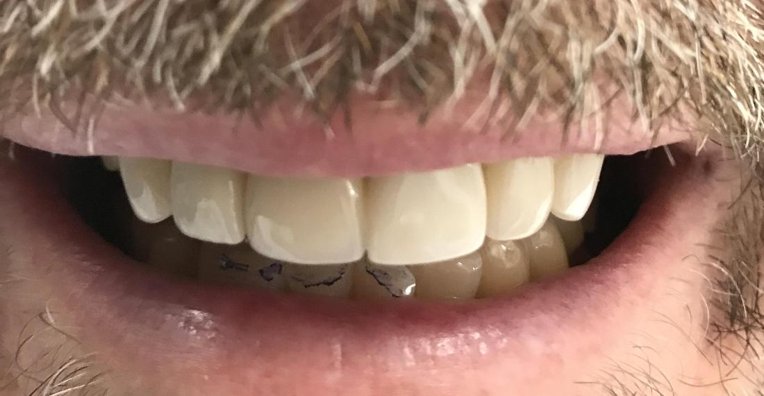 Front Tooth Replaced With Implant