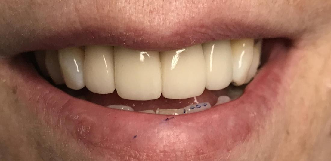 Replacement of Old Crowns, and Replace a Missing Front Tooth with an Implant