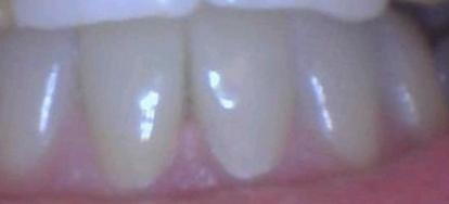 Fractured-Lower-Teeth-Restored-with-All-Ceramic-Crowns-After-Image