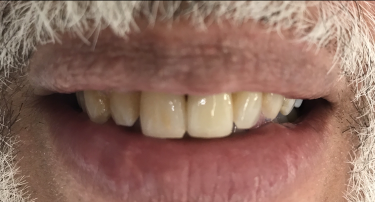 Front Tooth Replacement with Dental Implant