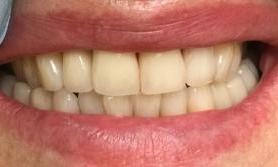 Minimally-Invasive-Front-Tooth-Replacement-After-Image