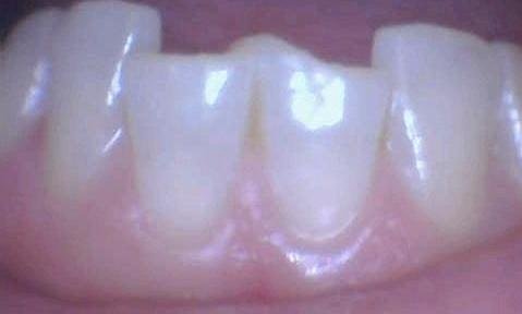 Fractured-Lower-Teeth-Restored-with-All-Ceramic-Crowns-Before-Image