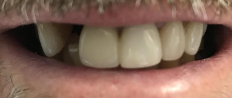 Front-Tooth-Replaced-With-Implant-Before-Image