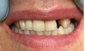 Minimally-Invasive-Front-Tooth-Replacement-Before-Image