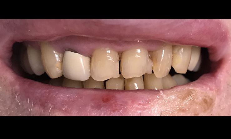 Rehab-of-Fractued-Teeth-Before-Image