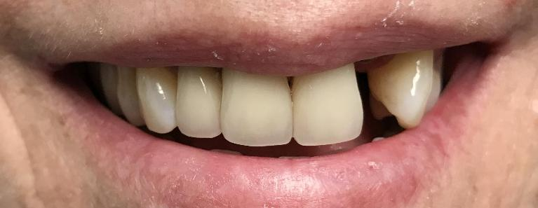 Replacement-of-Old-Crowns-and-Replace-a-Missing-Front-Tooth-with-an-Implant-Before-Image